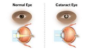 cataracts eyes
